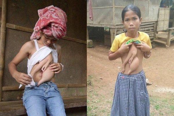 Филлипинскую девочку-мутанта прооперируют в Таиланде