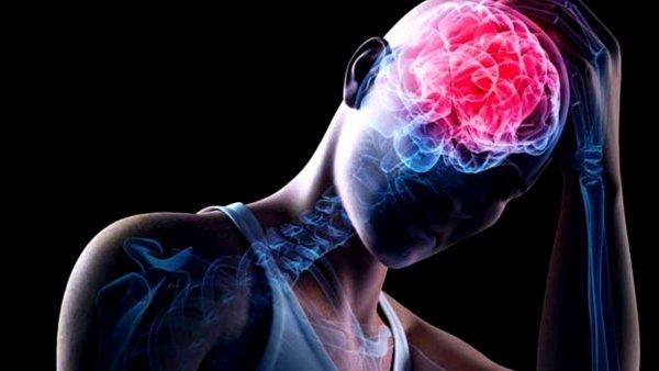 Учёные: Положение головы влияет на риск сотрясения мозга