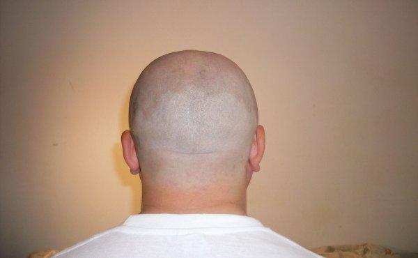 Надежда для лысеющих: Учёные создали прибор, стимулирующий рост волос