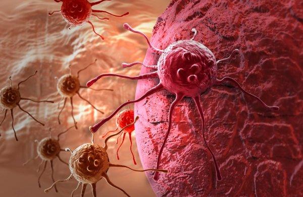 Рак молочной железы может стать причиной рака яичников – онкологи
