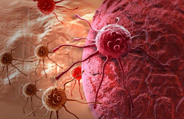 Ученые открыли новый метод распознания рака и активной борьбы с ним