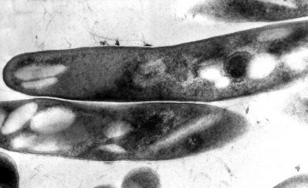 «Туберкулёз – болезнь будущего»: Учёные стоят на пороге открытия уникальной вакцины