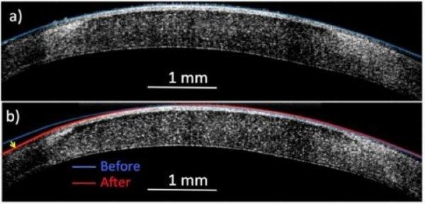 Новый нос за пять минут: Уникальный метод бескровной хирургии исправляет форму ткани без скальпеля