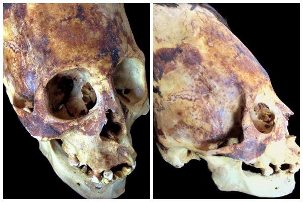 В Перу найден череп пришельца: Инопланетяне построили на Земле устройство связи – уфологи